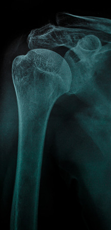 dislocation: X-ray anterior shoulder dislocation