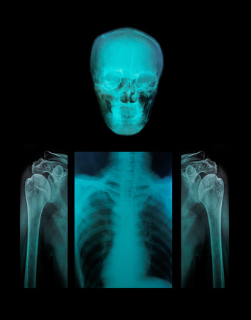 Collection x-ray multiple disease. photo