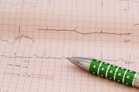 cardiological: ecg graph, electrocardiogram ekg and pen