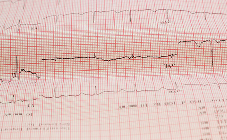 cardiological: ecg graph, electrocardiogram ekg