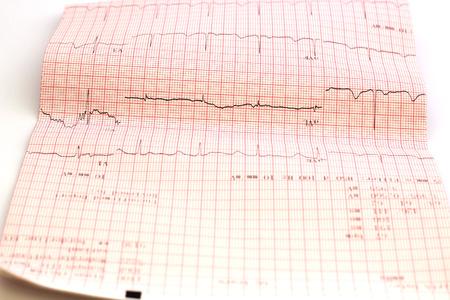 cardiological: ecg graph, Electrocardiogram ecg Stock Photo