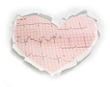 cardiological: ecg graph, Electrocardiogram ecg on paper