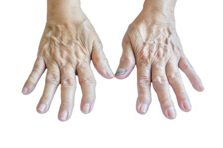 osteoarthritis: La osteoartritis manos de una mujer mayor en un fondo blanco Foto de archivo