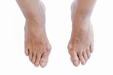 Hallux valgus, Hallux valgus in einer alten Frau Fuß auf weißem Hintergrund