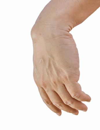cyst: Ganglion cyst on man hand isolated on white background
