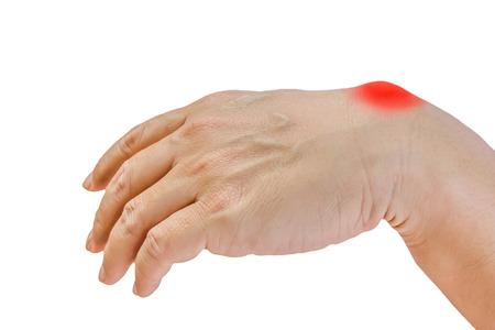 白い背景で隔離の男の手にガングリオン嚢胞 写真素材 - 56666501