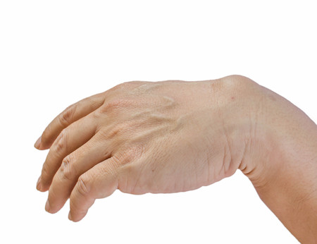 Ganglion cyst on man hand isolated on white background
