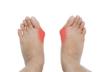 白い背景の上の足に外反母趾外反母趾、腱膜瘤 写真素材 - 59495421
