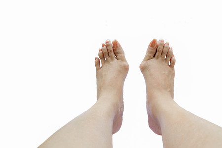 bunion: Hallux valgus, bunion in foot on white background