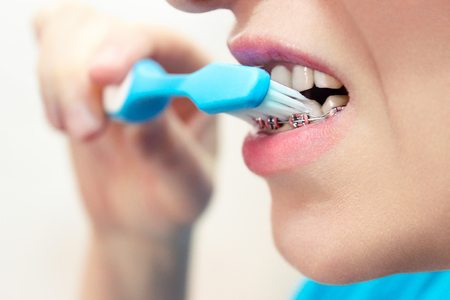 Dentist and orthodontist concept. Young woman cleaning and brushing teeth with pink braces using toothbrush Фото со стока