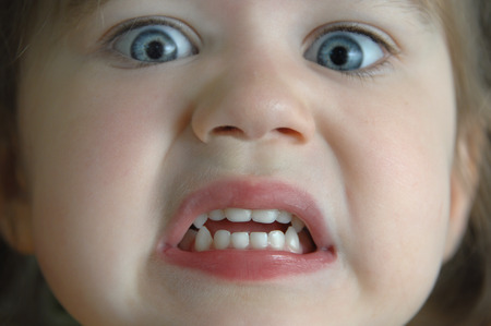 bulging: Extreme closeup of little girls face shows her terrified expression.  Her eyes are bulging and her teeth are gritted.