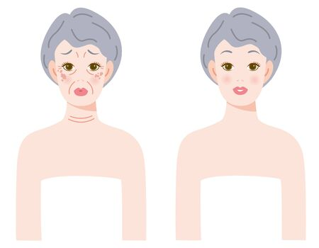 The woman of skin who ages  Before after