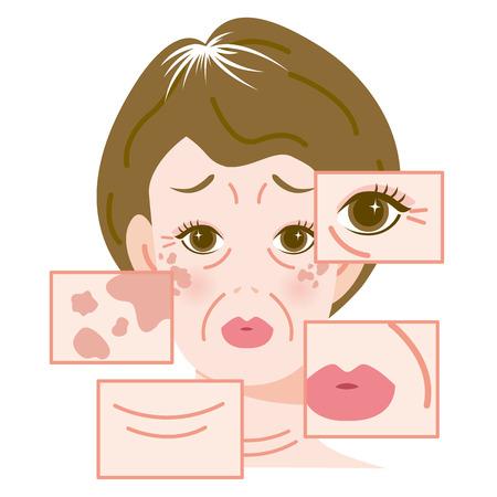 aging face: Damage of skin