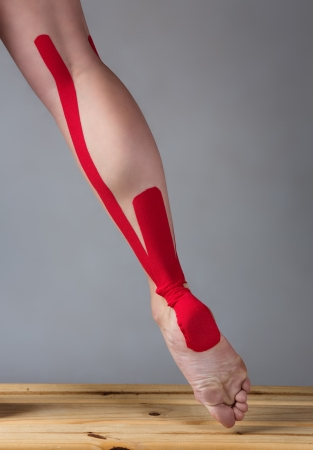 strapping: Red strapping on an injured calf of a young adult female dancer