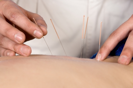alternative medicine: Adult male physiotherapist is doing acupuncture on the back of a female patient  Patient is lying down on a bed and is covered with royal blue towels