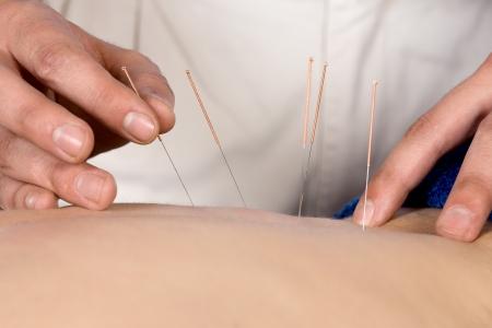 acupuntura china: Var�n adulto fisioterapeuta est� haciendo la acupuntura en la espalda de un paciente paciente est� acostado en una cama y se cubri� con toallas azules reales Foto de archivo