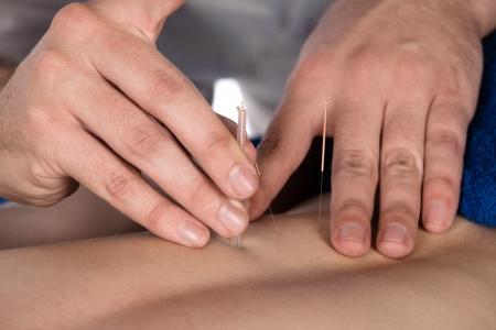 acupuntura china: Macho adulto fisioterapeuta est� haciendo la acupuntura en la espalda de un paciente. El paciente est� acostado en una cama y se cubri� con toallas azules reales.