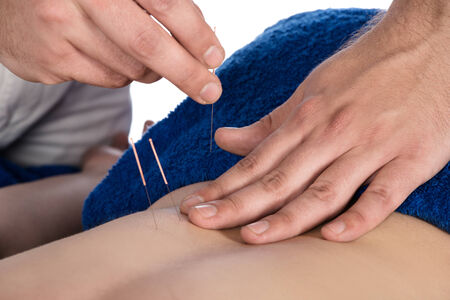 Adult male physiotherapist is doing acupuncture on the back of a female patient. Patient is lying down on a bed and is covered with royal blue towels. Stock Photo - 22965865