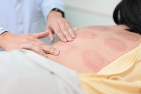 Chinese treatment, Glass cure on the back of a patient at the hospital. Stock Photo