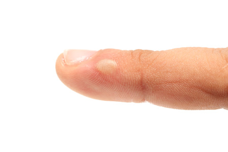 Burn injured finger photo