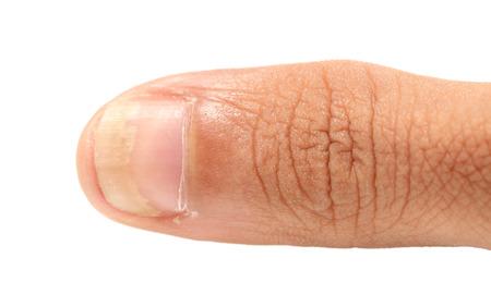 白の背景に分離爪の菌類