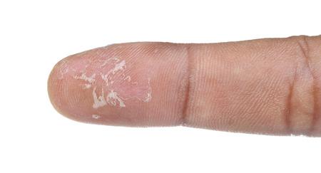 dermatitis: Eczema Dermatitis of Fingers isolate on white Stock Photo