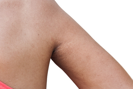 shrunken: scratch mark and wrinkle of armpit