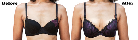 breasts girl: before and after between womens Breast Surgery