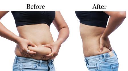 mujeres gordas: grasa del vientre mujeres corporal entre antes y después de la pérdida de peso