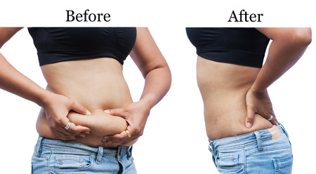 hands on stomach: women body fat belly between before and after weight loss