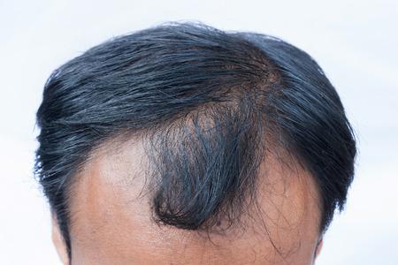 cabeza: cabeza calva del hombre joven en el fondo blanco
