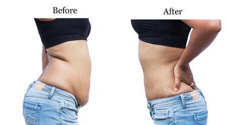 women body fat belly between before and after weight loss Banco de Imagens - 44341081