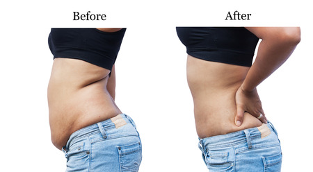 women body: women body fat belly between before and after weight loss