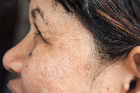 skincare and health concept - wrinkles on the face