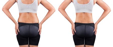 gordos: mujeres gordas de atr�s, antes y despu�s de la p�rdida de peso