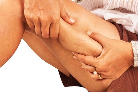 gordo: Muslos gordos, la celulitis de las mujeres de mediana edad. Foto de archivo