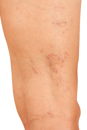 spider: Varicose veins on the legs of middle-aged women.