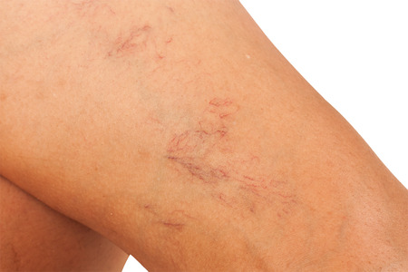 woman legs: Varicose veins on the legs of middle-aged women.