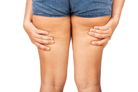 mujeres gordas: Muslos gordos, la celulitis de una adolescente.