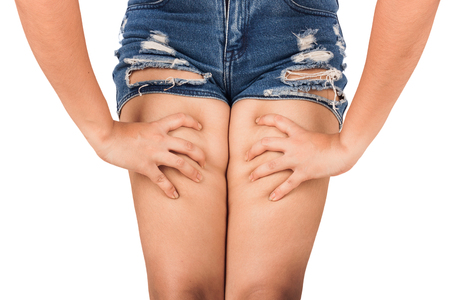 women show cellulite at leg