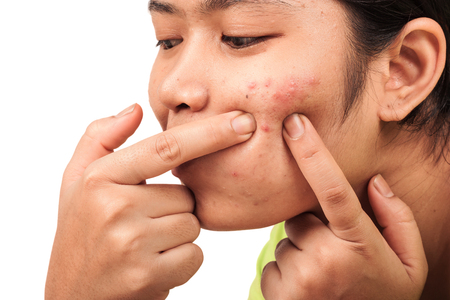 acne on  skin face women