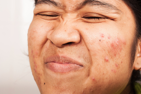 women show hair at nose and acne on face