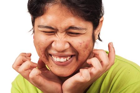 blackhead: acne on skin face women