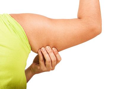 axila: mujeres muestran arrugas de grasa de la axila fondo del aislante