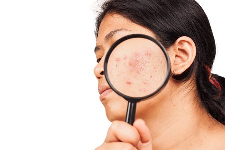 women show acne on skin with magnifier Stockfoto