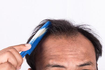 bald head: young men show bald head Stock Photo