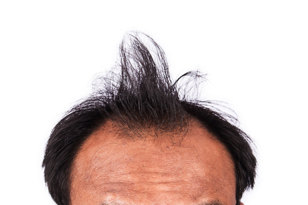 bald head: bald head of young man on white background