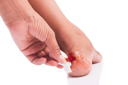 herida: herida en el tal�n Foto de archivo