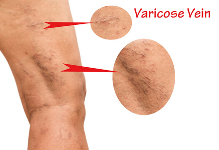Varicose veins on the legs of middle-aged women.