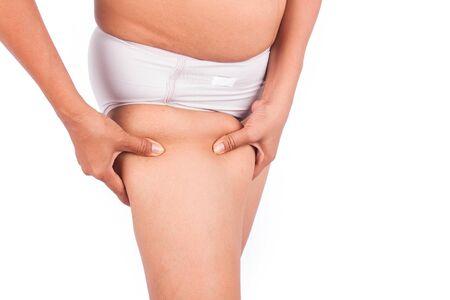 thighs: Muslos gordos, la celulitis de las mujeres de mediana edad. Foto de archivo